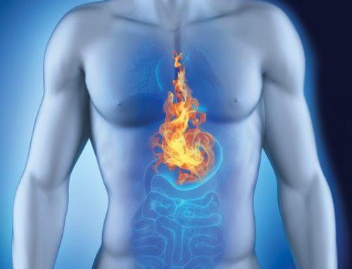 Brandend maagzuur verminderen.